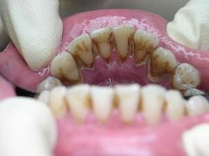 Чистка зубов (фотография)