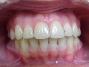 Ортодонтия (фотография)