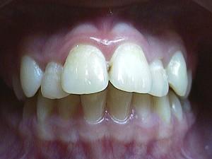 Ортодонтия (фото)