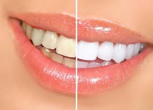 Отбеливание зубов (картинка)