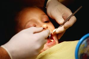 Пломбирование зубов (фото)