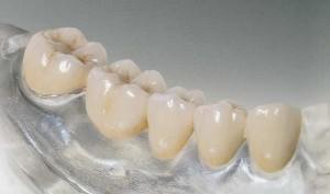 Протезирование зубов (картинка)