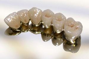 Протезирование зубов (фотография)