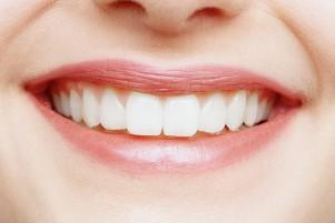 Реставрация зубов (фото)