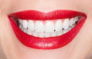 Реставрация зубов (изображение)