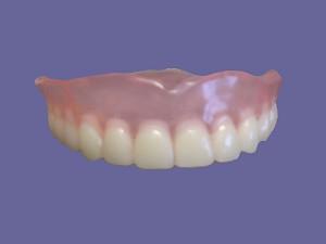 Съемные зубные протезы (картинка)