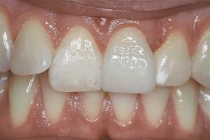 Зубы металлокерамика (фото)