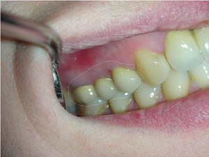 Зубы металлокерамика (картинка)